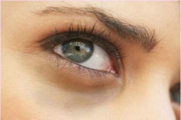 الهالات السوداء حول العينين أسباب و العلاج