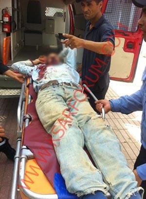 نقل عامل بناء في حالة خطيرة إلى طنجة بعد سقوطه من الطابق الثالث