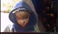 نداء إنساني: طفل يعاني من مرض نادر