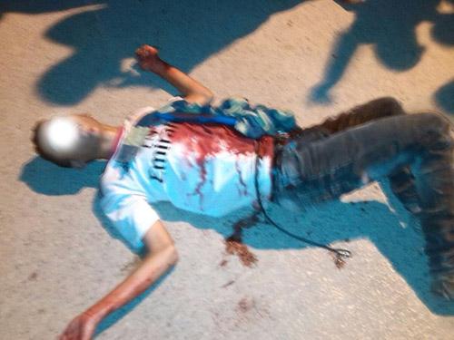 نقل تلميذ  في حالة حرجة إلى ابن سينا بعد تلقيه طعنة من زميل له بسبب تلميذة