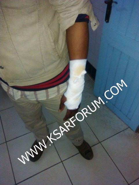 عاجل: الاعتداء على مواطن من إفريقيا جنوب الصحراء بهدف السرقة