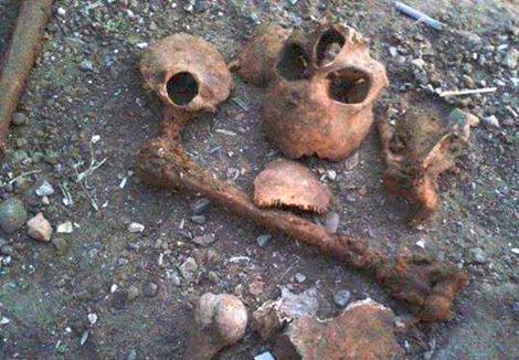 القصر الكبير: أطفال يلعبون بعظام لهياكل بشريَّة اكتشفت صدفة