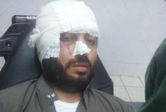 سائق طاكسي يطعن خطيب مسجد بالعرائش