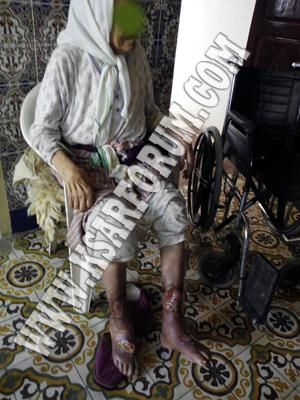 حالة إنسانية : السكري ينهش أرجل السيدة رحمة .. هي في حاجة إلكيم